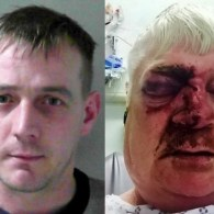 British Gay Man Speaks Out About Beating by Cage Fighter Keith Moult That Left Him for Dead
