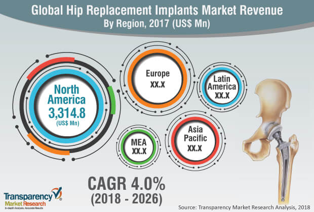 Hip Replacement Implants Market to Reach over US$ 90 Bn by 2026 \u2013 TMR
