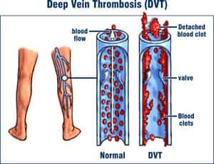 DVT diagram