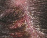 Scabs on Scalp: Causes, Treatment & Remedies | Treat, Cure ...