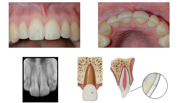 Dental Trauma Part I Infraction, Crown Fractures  Vital Pulp