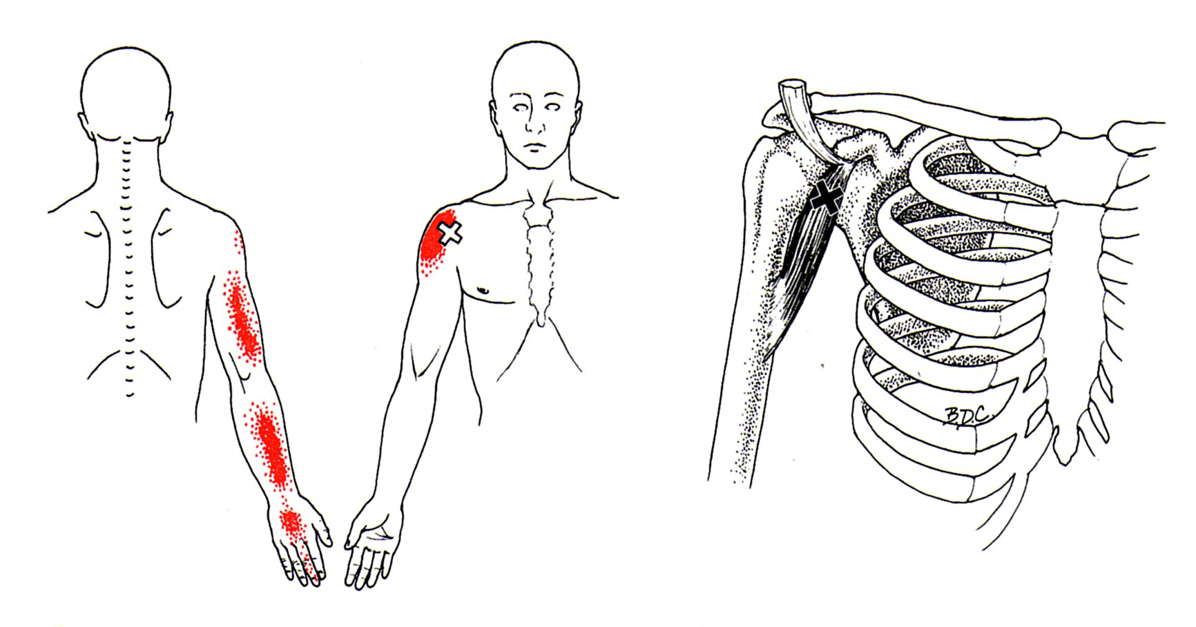 diagram front and back pain