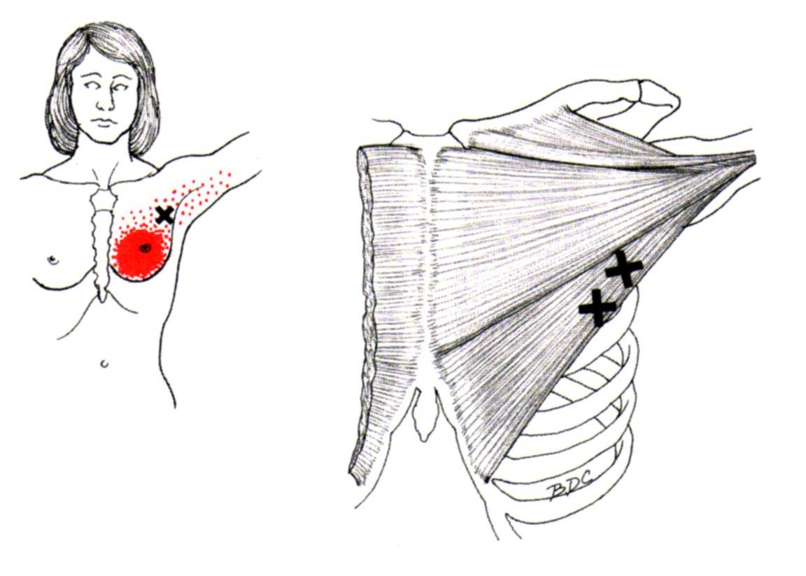 pectoralis major muscle diagram