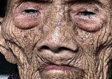 256 Years Old Man