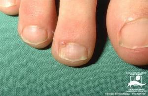 unguální a periunguální fibromy