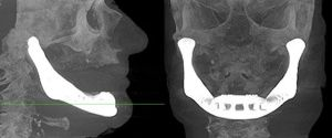 3D Printed Jaw Bone – Truly Jawsome Technology