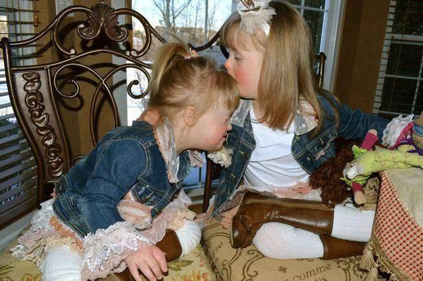 bambine sindrome di down 2