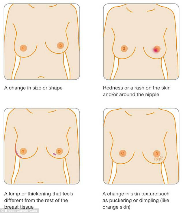 altri segnali cancro al seno