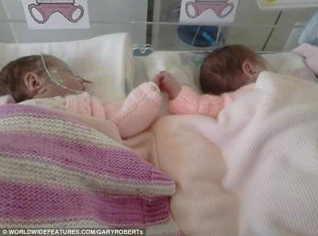 Separate alla nascita, due gemelle premature commuovono tutti (FOTO & VIDEO)
