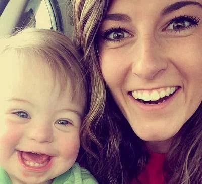 bimbo di 2 anni con la sindrome di down