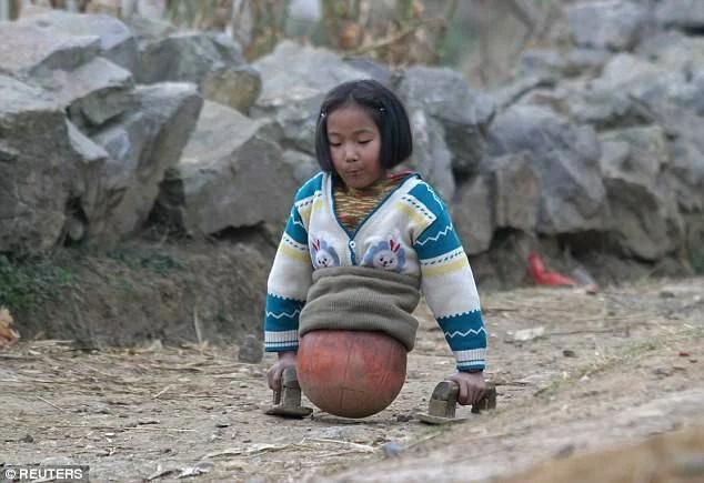 """Qian, la bambina """"palla da basket"""" che non ha rinunciato ai suoi sogni (FOTO)"""