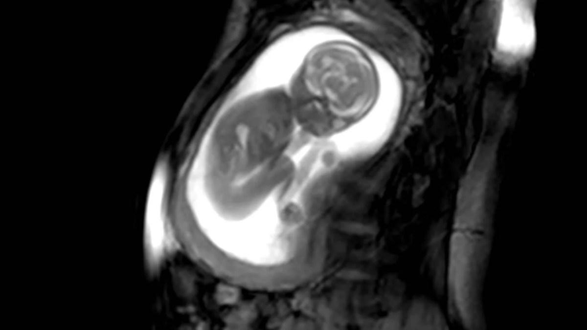 I movimenti fetali visti con la MRI: presto nuove diagnosi più precise  (VIDEO)