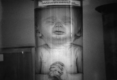 mengele-victimas-experimentos1