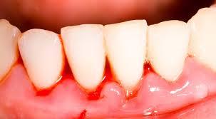 Elimina la gingivites y el sangrado de los dientes