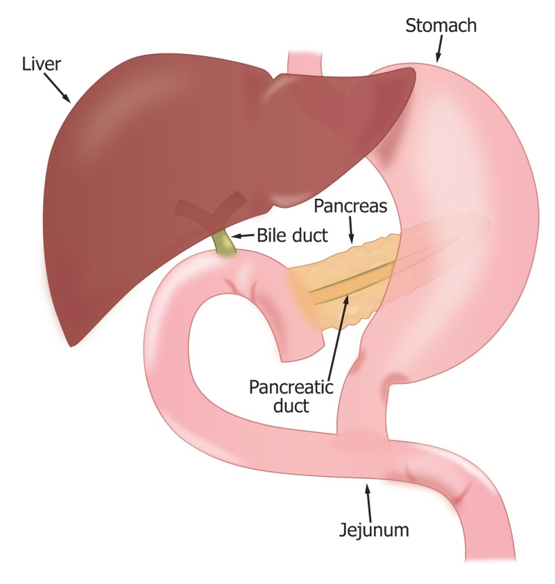 Pancreatic Head Resection (Whipple Procedure), Liver and Pancreas