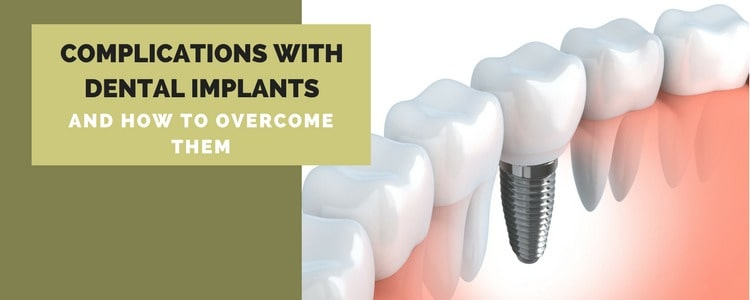 Complications With Dental Implants (And How To Overcome Them)
