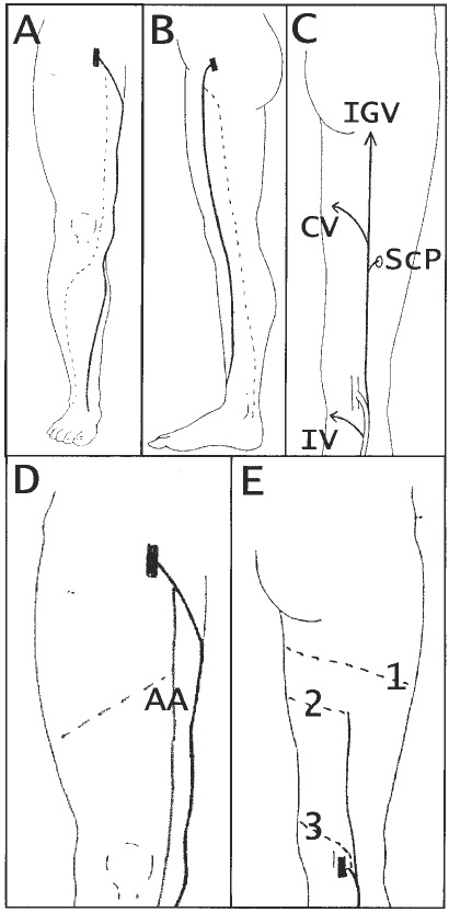 Nomenclature of the veins of the lower limbs  An international
