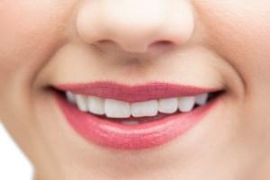 Zahnaufhellung fuer ein schoenes Lachen