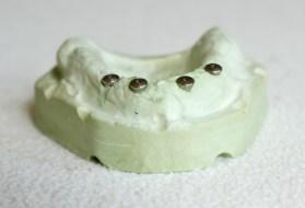 Zahnersatz und Implantate sind teuer