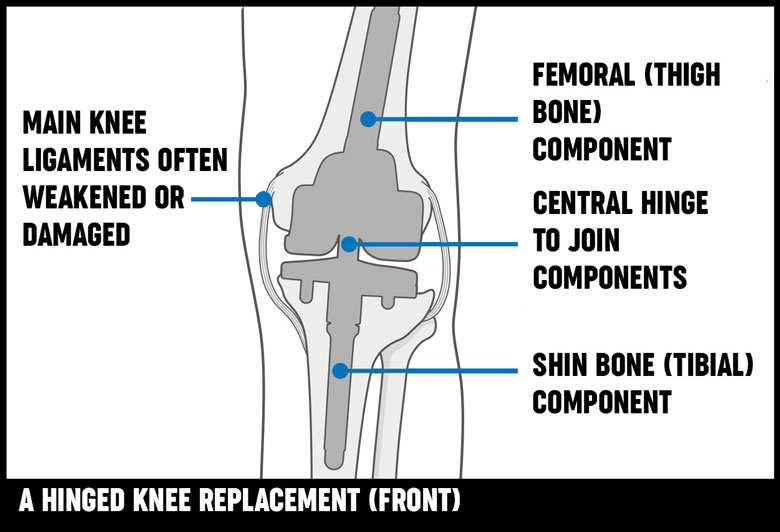 diagram of knee replacement