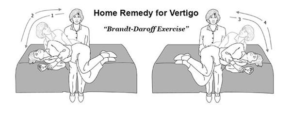 Exercises For Vertigo And Dizziness Vertigo Expert