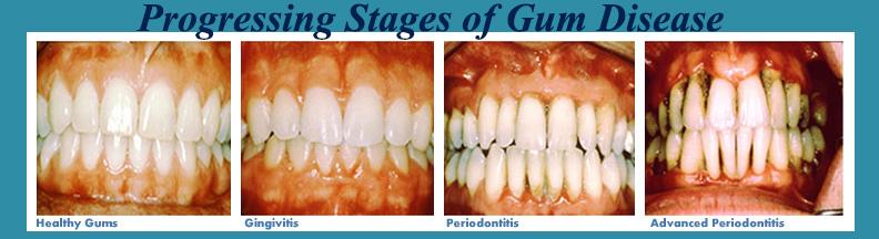 Gingivitis and Periodontitis are Common Form of Gum Disease - ABC