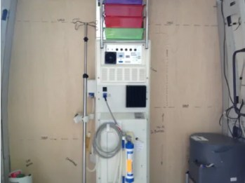 The dialysis machine
