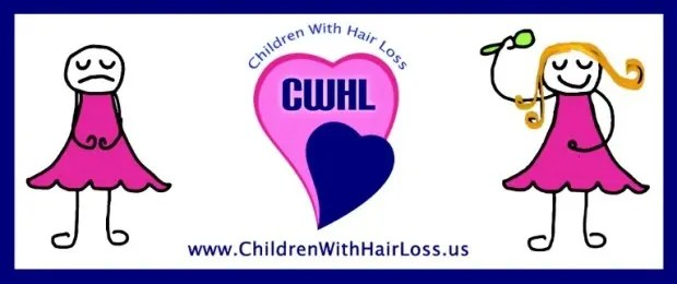 childrenwithhairloos