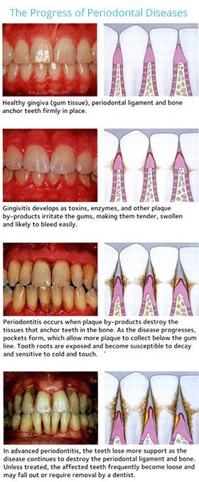 Gum Disease Therapy - Virginia Family DentalVirginia Family Dental