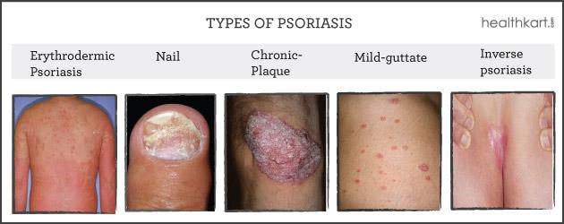 Psoriasis bukan penyakit berjangkit 1