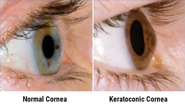 Corneal Collagen Cross Linking Keractoconus - Visionary Eye Doctors