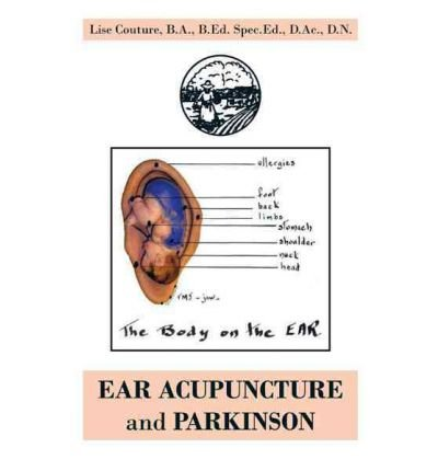 Best Download By (author) Lise Couture ☆ EAR ACUPUNCTURE and