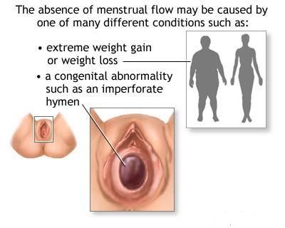 intact hymen