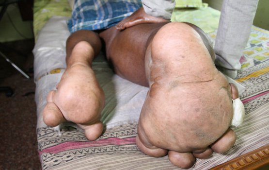 Indian Man's Leg Weighs As Much As A Baby Elephant