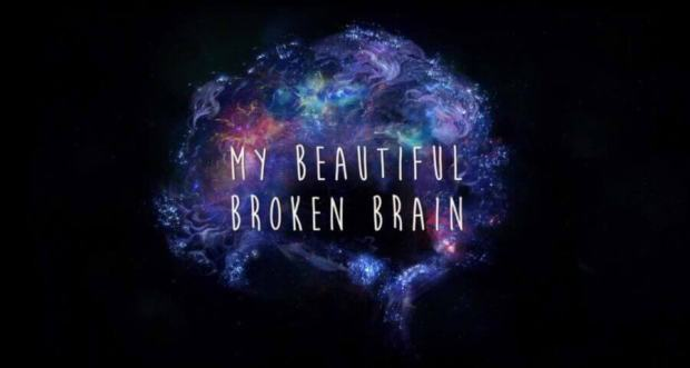 my-beautiful-broken-brain