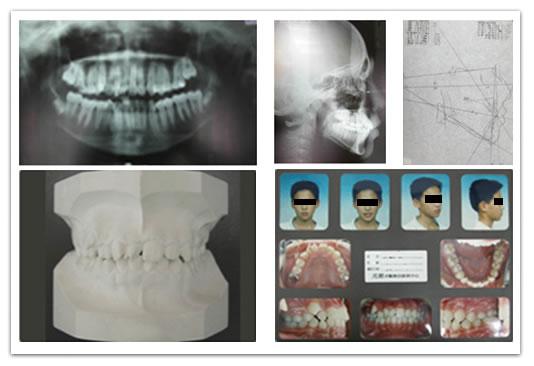 白石牙醫診所-齒顎矯正