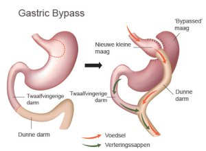 gastric-bypass