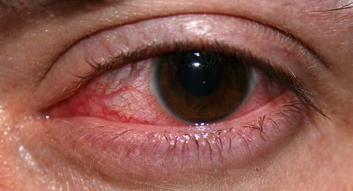 Clare-314jpg - Presumed Ocular Histoplasmosis