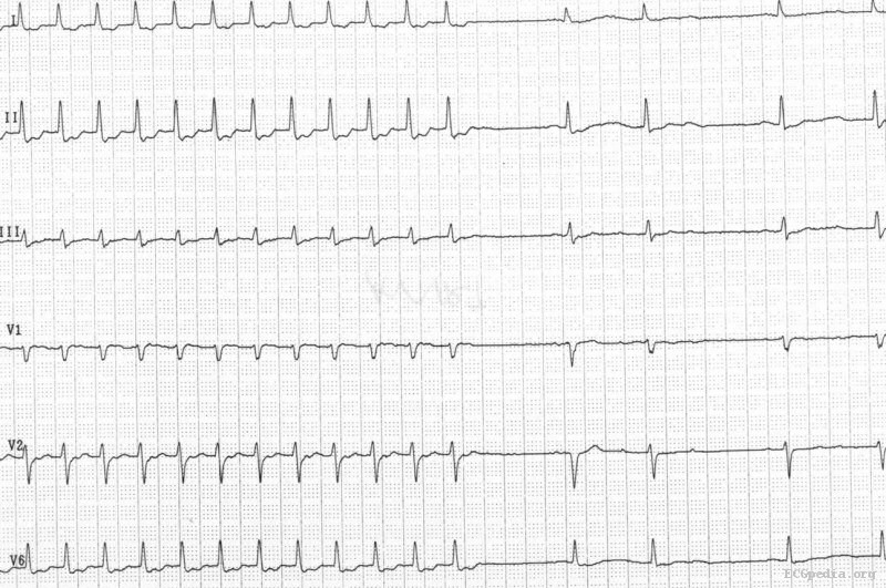 AVNRT electrocardiogram - wikidoc