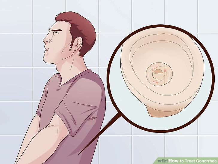 How to Treat Gonorrhea 9 Steps (with Pictures) - wikiHow - cure for chlamydia