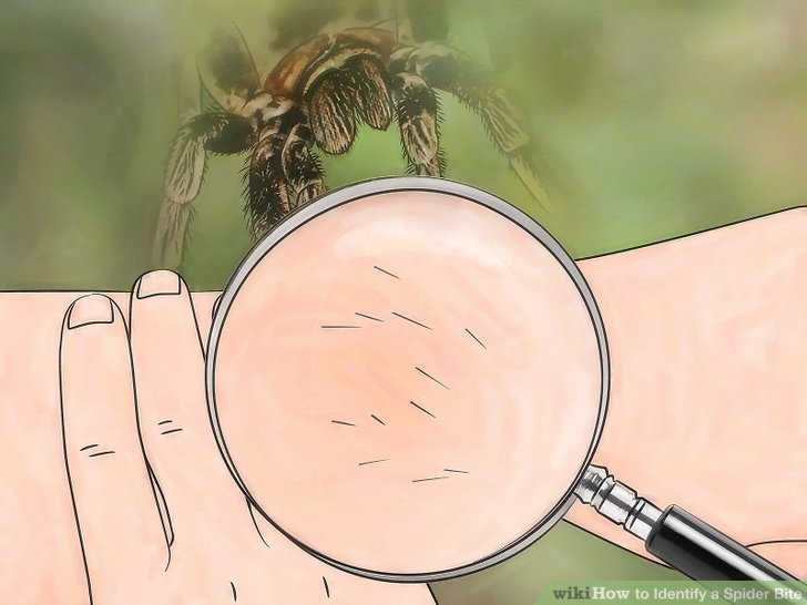 How to Identify a Spider Bite, with EMR-Approved Expert Advice