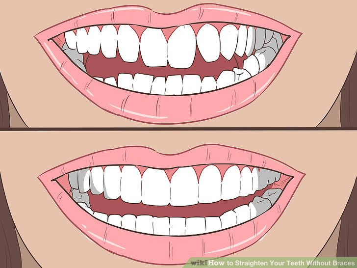 How To Straighten Your Teeth Without Braces With Pictures