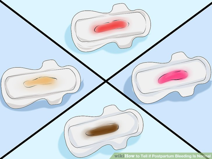 3 Ways to Tell if Postpartum Bleeding Is Normal - wikiHow