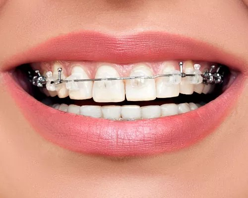 Clear Braces Toronto Wired Ortho
