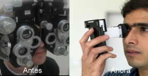 medir-vista-oftalmologia