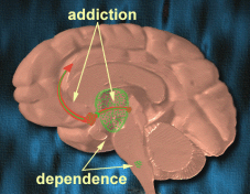 Addictiondependence1