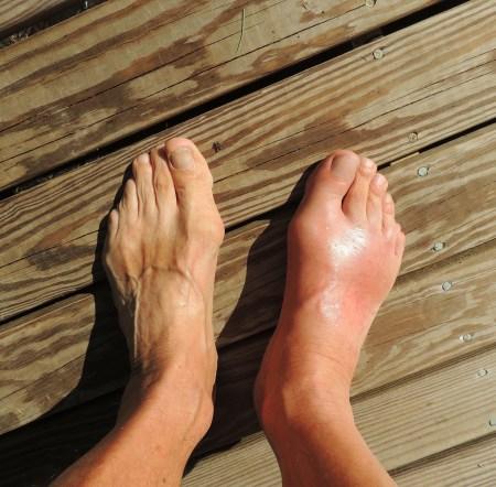 Fake Gout Symptoms