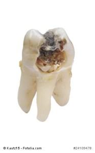 Loch im Zahn