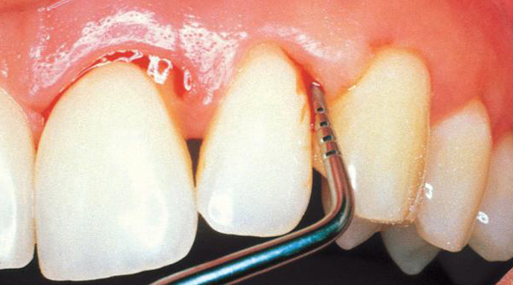 Yakubiv Dental Clinic Gingivitis means inflammation of the gums