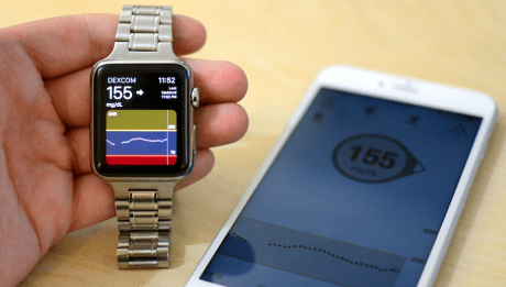apple watch dexcom